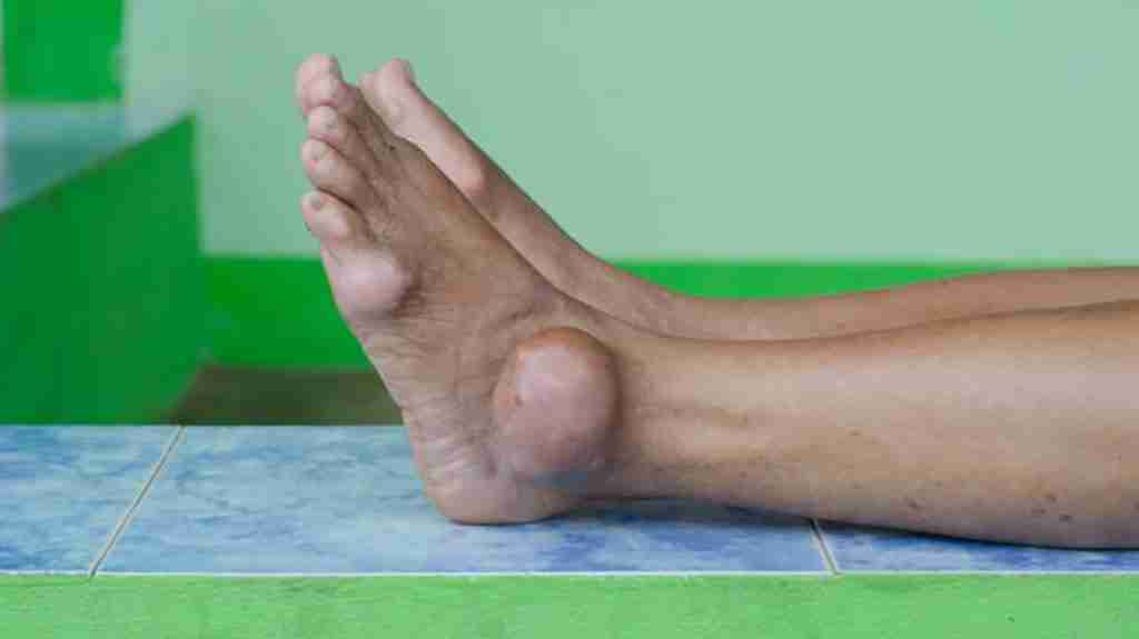 Foot with gout in the ankle